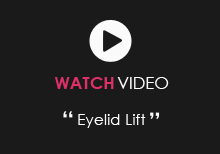 Watch Video About Eyelid Lift